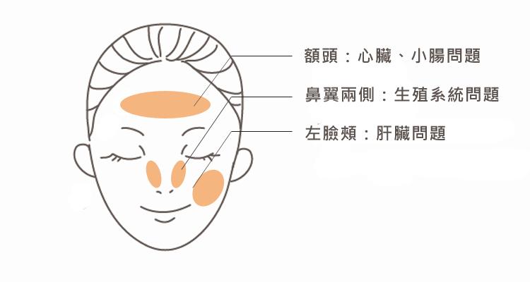 痘痘在額頭鼻翼左臉頰位置代表的身體警訊